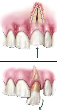 Traumatic Injuries | Advanced Endodontics, PC